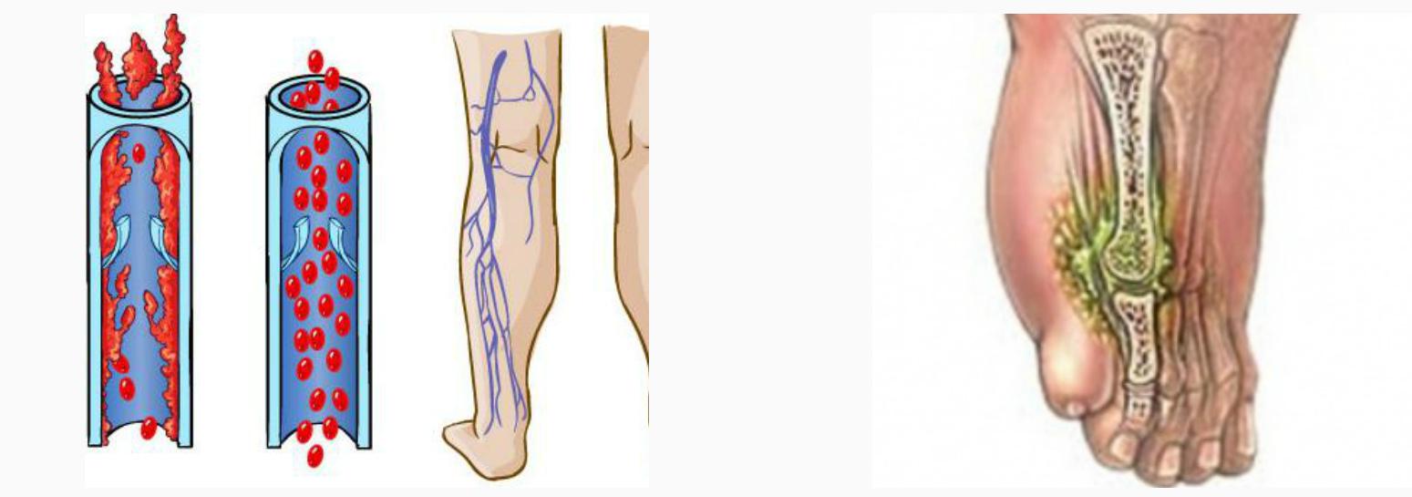 Ампутация пальца ноги при сахарном диабете - причины и последств..