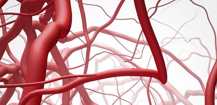 Диабетическая микроангиопатия нижних конечностей