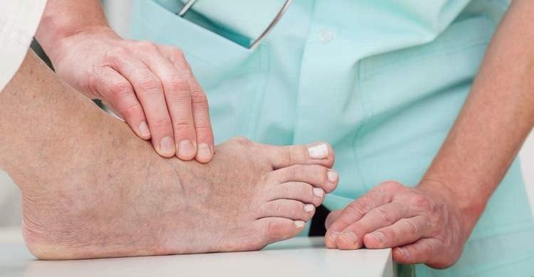 Диабетическая стопа: виды, симптомы, лечение, профилактика