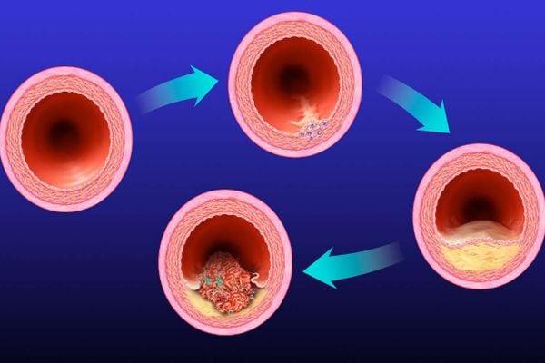 Как диагностировать атеросклероз?