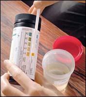 Гликемический и глюкозурический профиль: цель исследования при диагностике