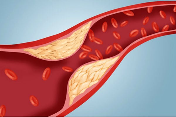 Что делать, если уровень холестерина 13?