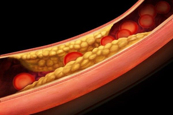 Холестерин 20 в анализе крови: что делать?