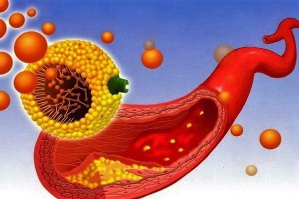 Холестерин 5: это нормально или нет, если уровень от 5.1 до 5.9?
