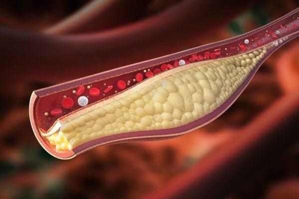 Холестерин 6: что это означает, это много от 6.1 до 6.9?