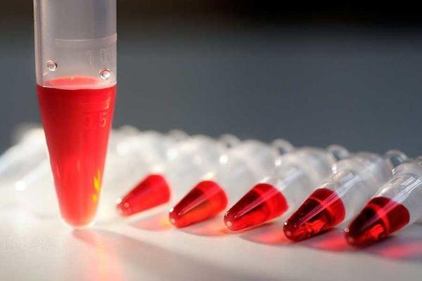 Холестерин 9: что это значит, если уровень от 9.1 до 9.9 в крови?