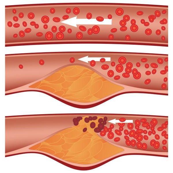 Холестеринемия: классификация и лечение при повышенном холестерине