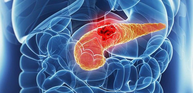 Инсулинома: симптомы, диагностика, лечение