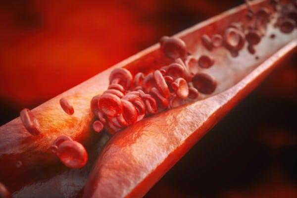 Как узнать есть ли атеросклероз сосудов?