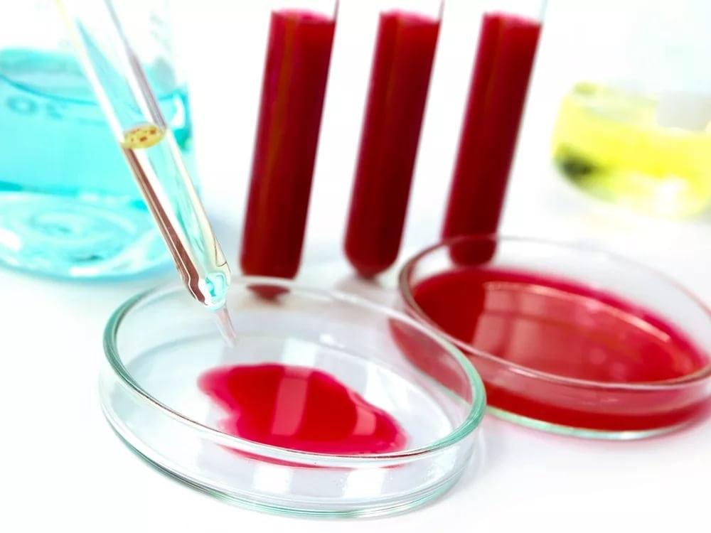 Глюкоза в сыворотке крови норма: нормальная и повышенная концентрация