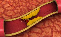 Лекарство от холестерина в крови при сахарном диабете 1 и 2 типа: диета для взрослых и детей