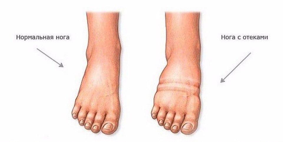 Отекают ноги при сахарном диабете - что делать?