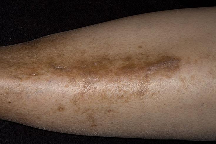 Пятна на ногах при сахарном диабете - виды и лечение