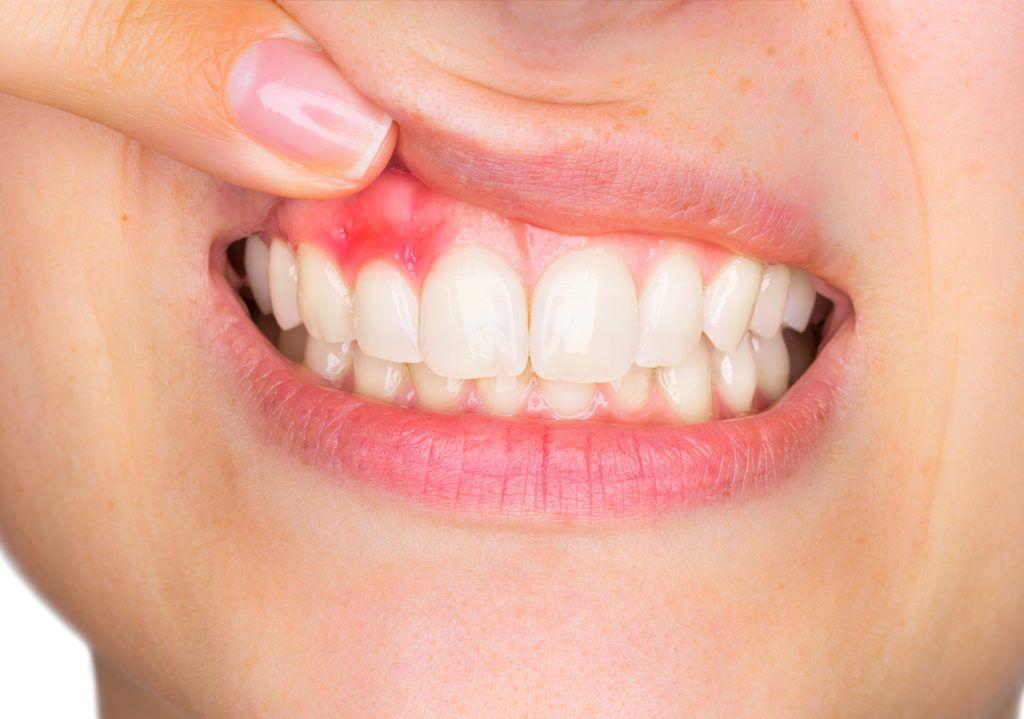 Проявления сахарного диабета в полости рта