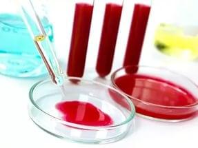 Норма сахара в крови из вены натощак: уровень после еды