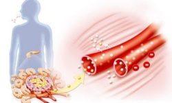 Сахар с нагрузкой: как правильно сдать анализ крови на глюкозу