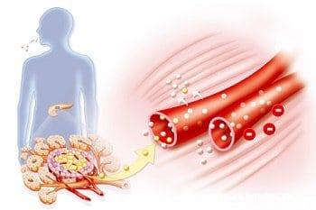 Анализ крови на сахар с нагрузкой: как правильно сдать