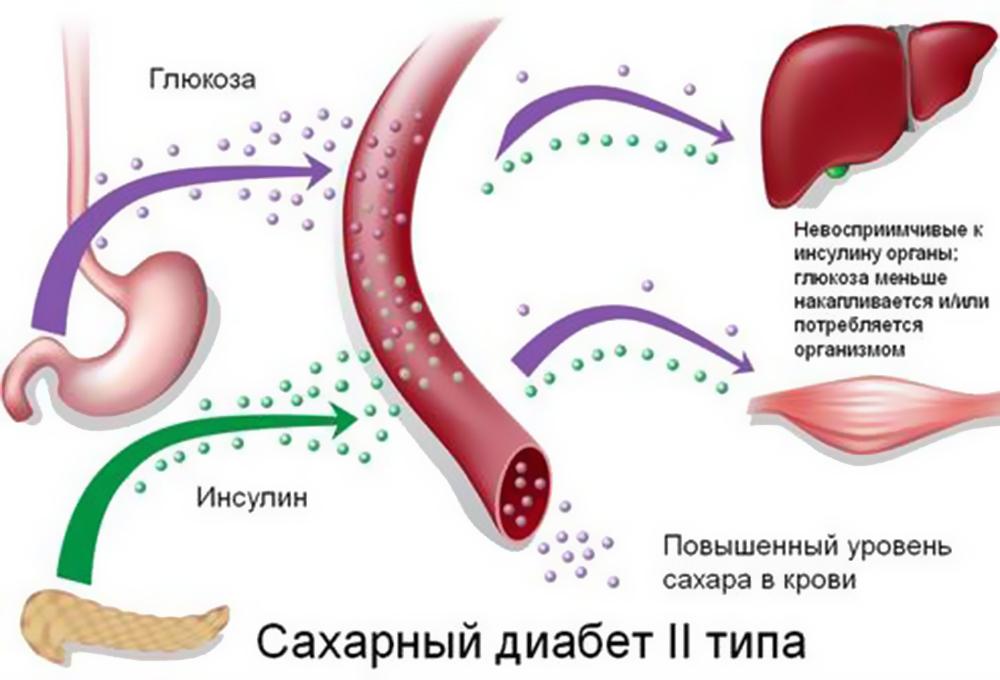 Сахарный диабет 1 и 2 типа - сколько с ним живут?