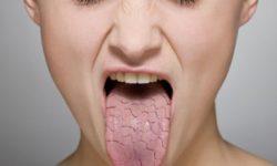 Сухость во рту при сахарном диабете